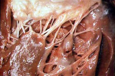 Images of Myocardial Infarction