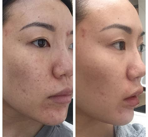 Perioral Dermatitis Natural Cure - I saw results in two weeks!
