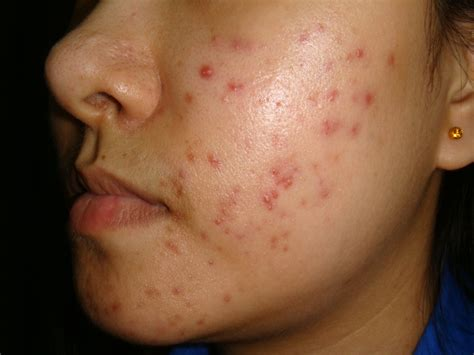 Acne Treatment From A Dermatologist - How To Treat Acne
