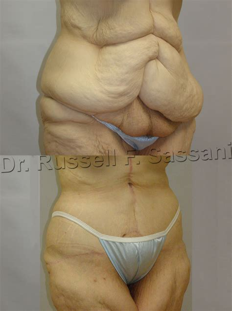 Before & After pic of Fleur-de-lis Abdominoplasty used in
